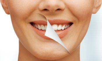 Sbiancamento Dentale Albania, Sbiancamento dei Denti Albania Dental Care Albania, Lo sbiancamento dentale è una procedura per migliorare il colore dei denti