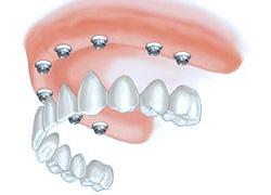 Protesi Dentali in Albania Prezzi - Dental Care Albania - Protesi Dentali Mobili Totali, Protesi Dentali Mobili Parziali, Protesi Dentali Fisse su Impianti